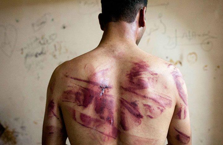 الغارديان: التعذيب في السجون أصبح كالوباء في عهد السيسي