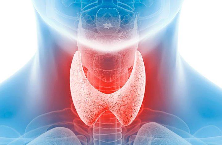 علاج الغدة الدرقية بالأطعمة والملح والمكملات الغذائية