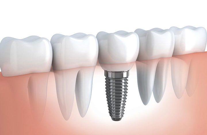 تعرف علي الفرق بين تركيب الاسنان وزرعها