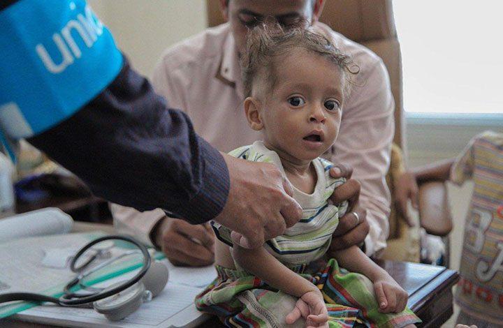 الصحة العالمية: ارتفاع إصابات الكوليرا في اليمن لأكثر من 700 ألف حالة
