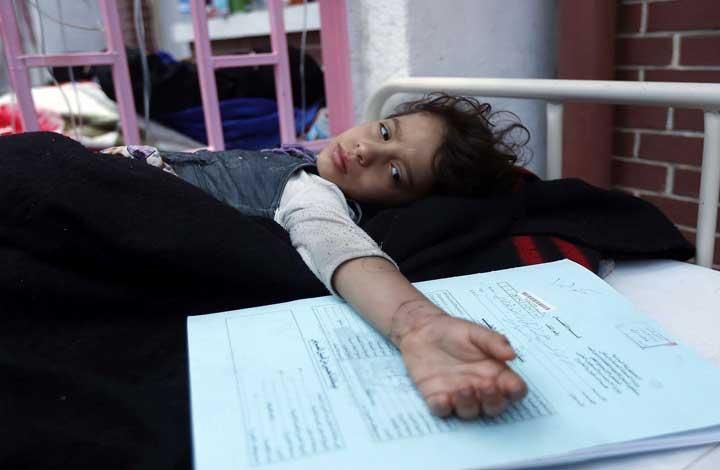 الصحة-العالمية-وفاة-32-حالة-بمرض-الدفتريا-في-اليمن