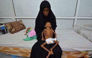 """مقال في """"واشنطن تايمز"""": أمريكا متواطئة مع السعودية في تجويع اليمنيين"""