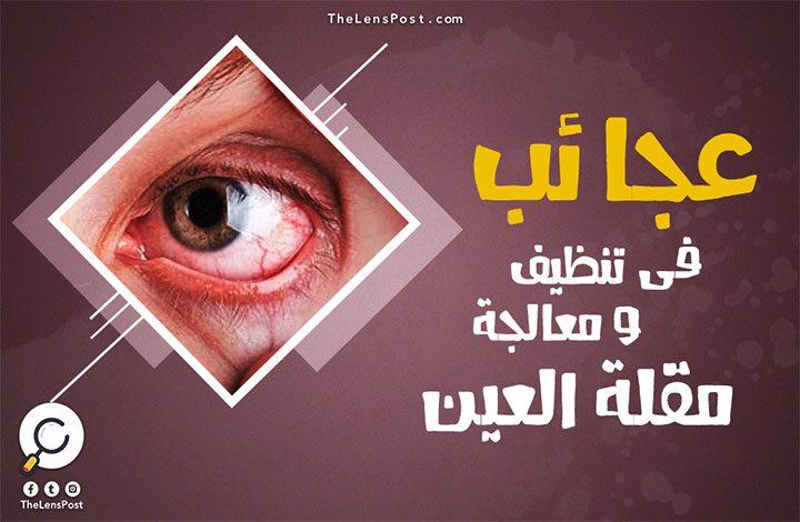عجائب في تنظيف ومعالجة مقلة العين