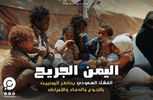 اليمن الجريح.. الفشل السعودي يحاصر اليمنيين بالجوع والدماء والأمراض