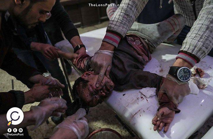 سوريا.. مقتل 416 شخصًا في 5 أيام بالغوطة الشرقية