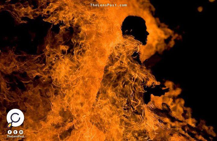 """شاب من """"البدون"""" يشعل النار في جسده بالكويت"""