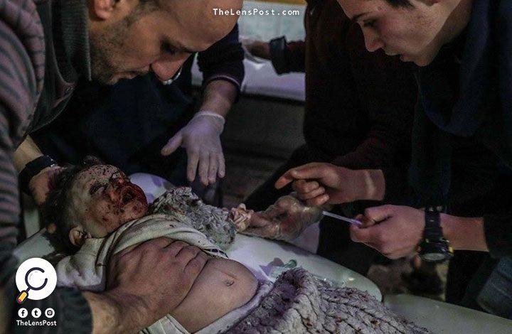 سوريا.. ارتفاع ضحايا الغوطة لـ480 شخصا سقطوا بين قتيل وجريح