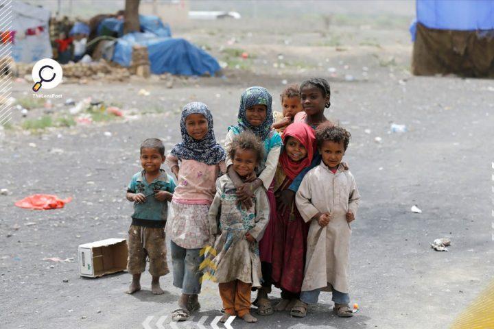 أطفال-اليمن-المتضررين-من-الحرب