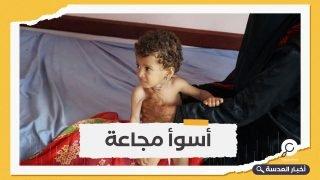 بسبب التمويل الأمريكي.. مأساة يواجهها أطفال اليمن في المستشفيات